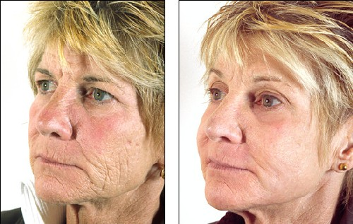 The Latest In Cosmetic Treatment Options Include Dermal