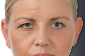Learn More About What Botox Treatments Can Do For You