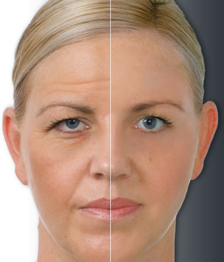 Antiaging-Botox-Injection